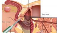علاج البروستاتا