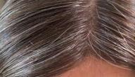 ظهور الشعر الأبيض