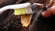 طريقة إزالة اللبان من الشعر