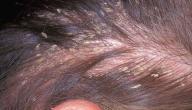 أضرار القمل على الشعر