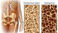 أسباب هشاشة العظام وعلاجها