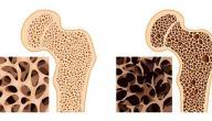 وصفة طبيعية لعلاج هشاشة العظام