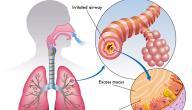 كيف اعالج ضيق التنفس