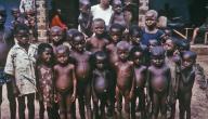 بحث حول مرض الكواشيوركور