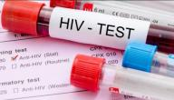 كيف يمكن اكتشاف مرض الإيدز