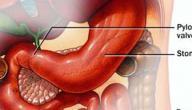 أسباب مرض جرثومة المعدة