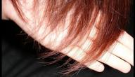 تساقط الشعر بسبب نقص الحديد
