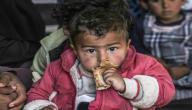 ما هو سوء التغذية