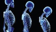 ضعف العظام عند الشباب
