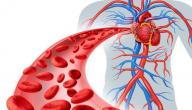 علاج انسداد عروق القلب