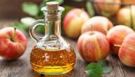 فوائد خل التفاح لدوالي الساقين