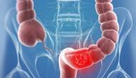 علاج سرطان القولون - فيديو