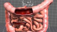 ماذا يأكل مريض القولون