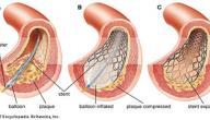 ما هو تعريف القسطرة القلبية