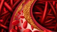 طرق تقليل نسبة الكولسترول في الدم