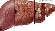 خلاصة عن مرض الكبد الوبائي