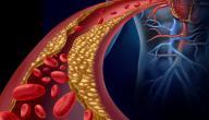 أعراض مرض الكوليسترول