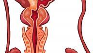 مرض البروستاتا