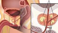 ملخص عن مرض البروستاتا