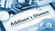 مرض اديسون