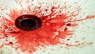 أسباب قيء الدم