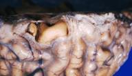 أعراض التهاب سحايا المخ