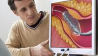 أضرار الكولسترول وعلاجه