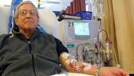 التخلص من اليوريا في الدم