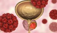 أعراض مرض البروستاتا المزمن
