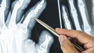 أعراض ترقق العظام