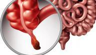 أعراض بداية التهاب الزائدة