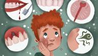 أضرار خراج الأسنان