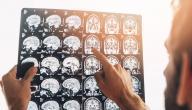 أنواع إصابات الرأس