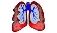 أسباب المياه على الرئة