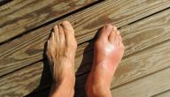 أعراض النقرس عند الرجال