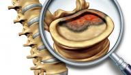 أعراض سرطان فقرات العمود الفقري