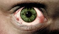 كيفية التخلص من احمرار العين