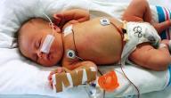 أمراض ثقب القلب عند الأطفال