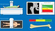 ما هو تحليل هشاشة العظام