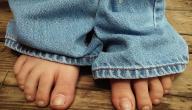 كيفية علاج تورم الأصابع