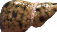 كيفية إزالة دهون الكبد
