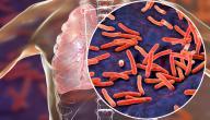 كيفية تشخيص مرض السل