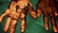ما هو سبب مرض البرص