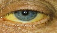 ما هو سبب اصفرار العين