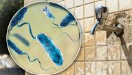 ما هي الأمراض التي يسببها تلوث المياه