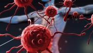 ما هي أعراض لوكيميا الدم