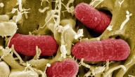 ما هو سبب نزول الدم مع البول