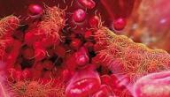 ما هو سبب نزول صفائح الدم