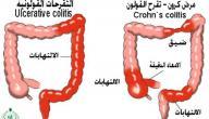 كيفية علاج مرض كرون