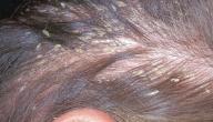 طريقة لإزالة القشرة من الشعر